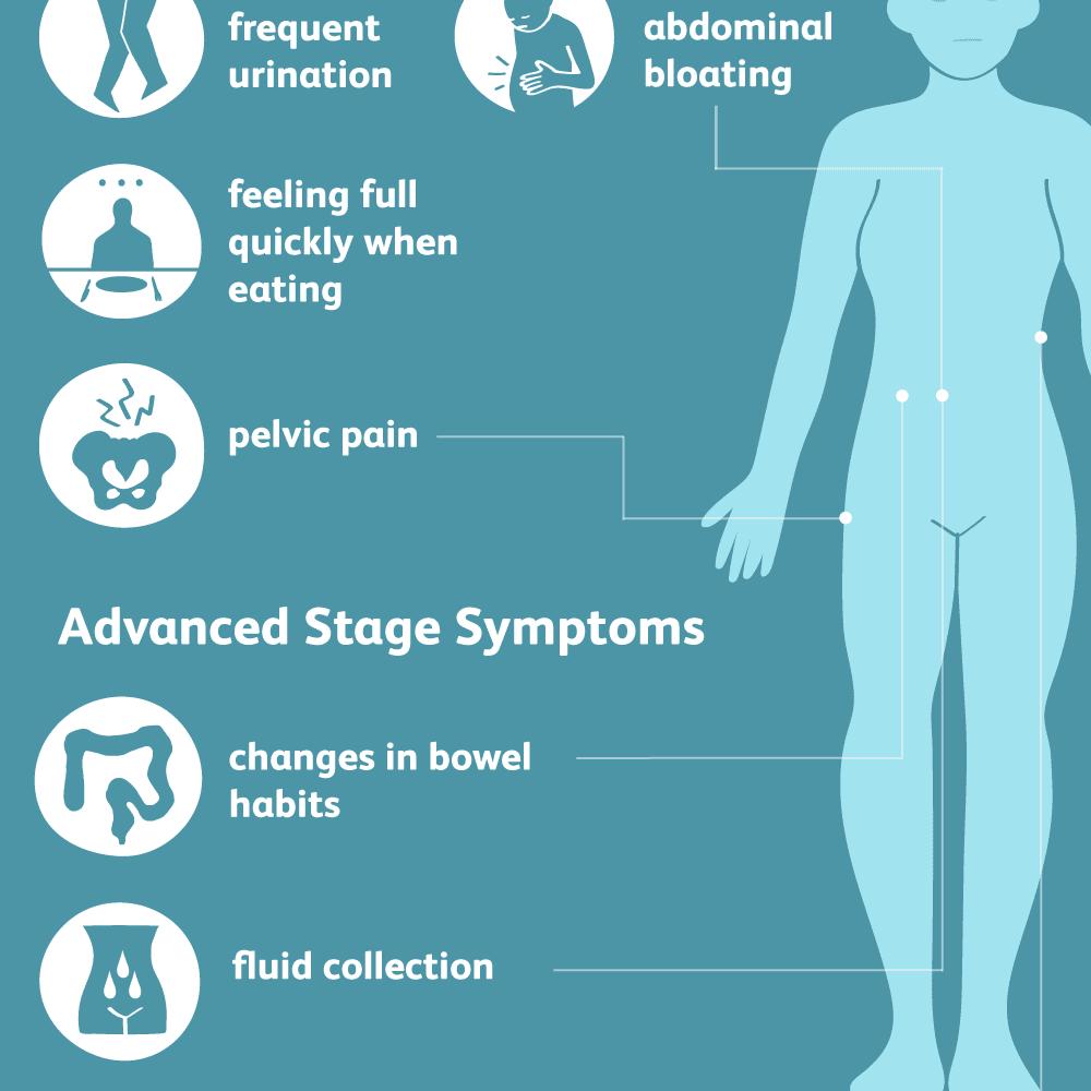Ovarian cancer leg pain. Ovarian cancer leg pain
