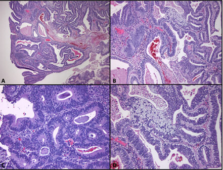 Colorectal cancer histology, Colon carcinom adenom mucinos - Rectal cancer histological types