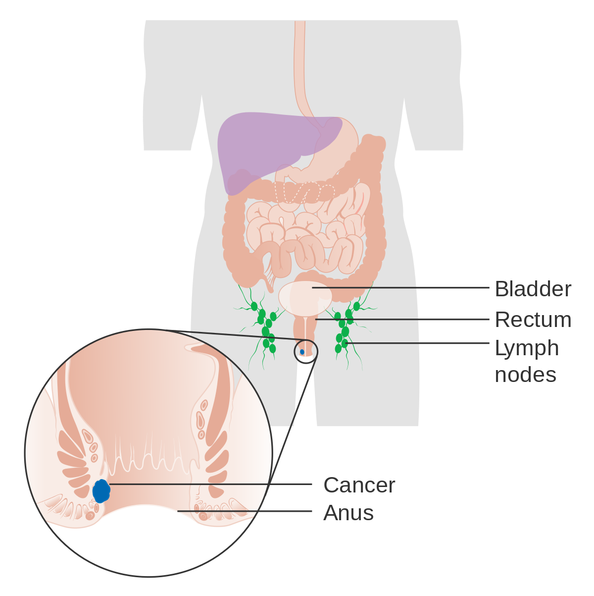 Can hpv virus cause rectal cancer, Hpv causes rectal cancer
