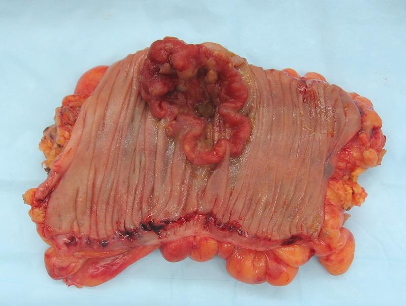 hpv virus with pregnancy paraziti giardia la om
