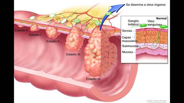 Cancer colorectal non-polipozic ereditar tip 2 (HNPCC) – mutații MLH1