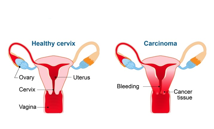 Does hpv cause ovarian cancer