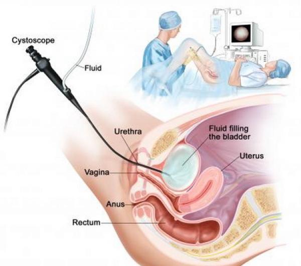 Cancerul Vezicii Urinare