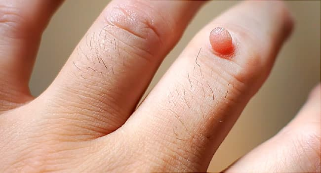What causes a wart virus