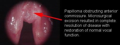 Single laryngeal papilloma Laryngeal papillomas symptoms.