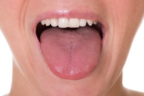 papilloma sulla lingua sintomi