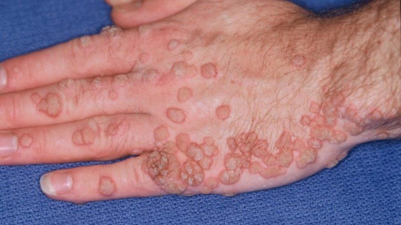 papilloma virus trattamento