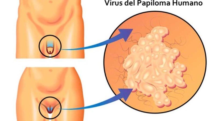 paraziti interni octozinici este tratat cu virusul papilomului uman