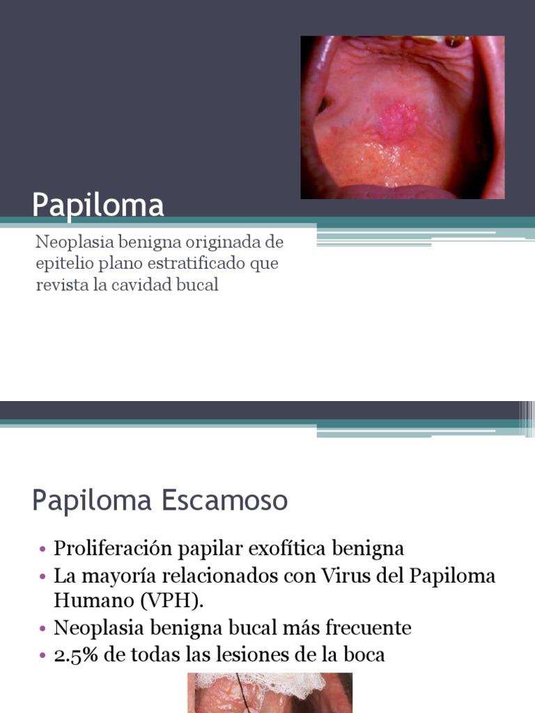 papiloma neoplasia