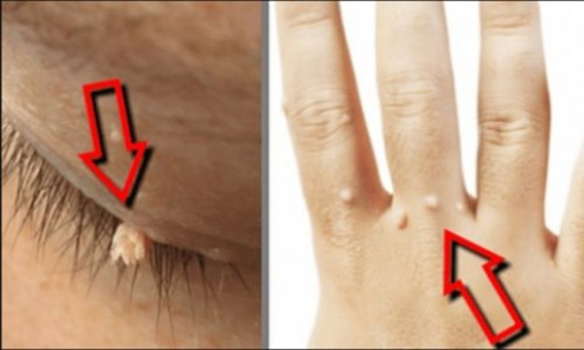 parazitoza alergii
