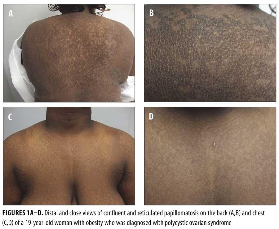 Papillomatosis on skin