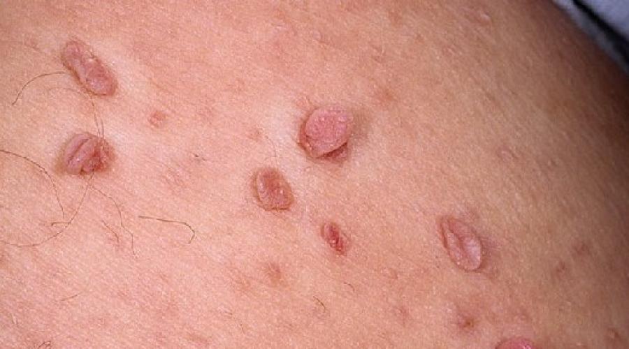 hpv warzen im rachen i primi sintomi del papilloma virus