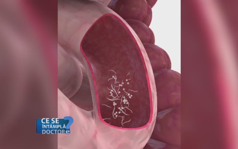 vierme pentru copii cancer abdominal lymph nodes
