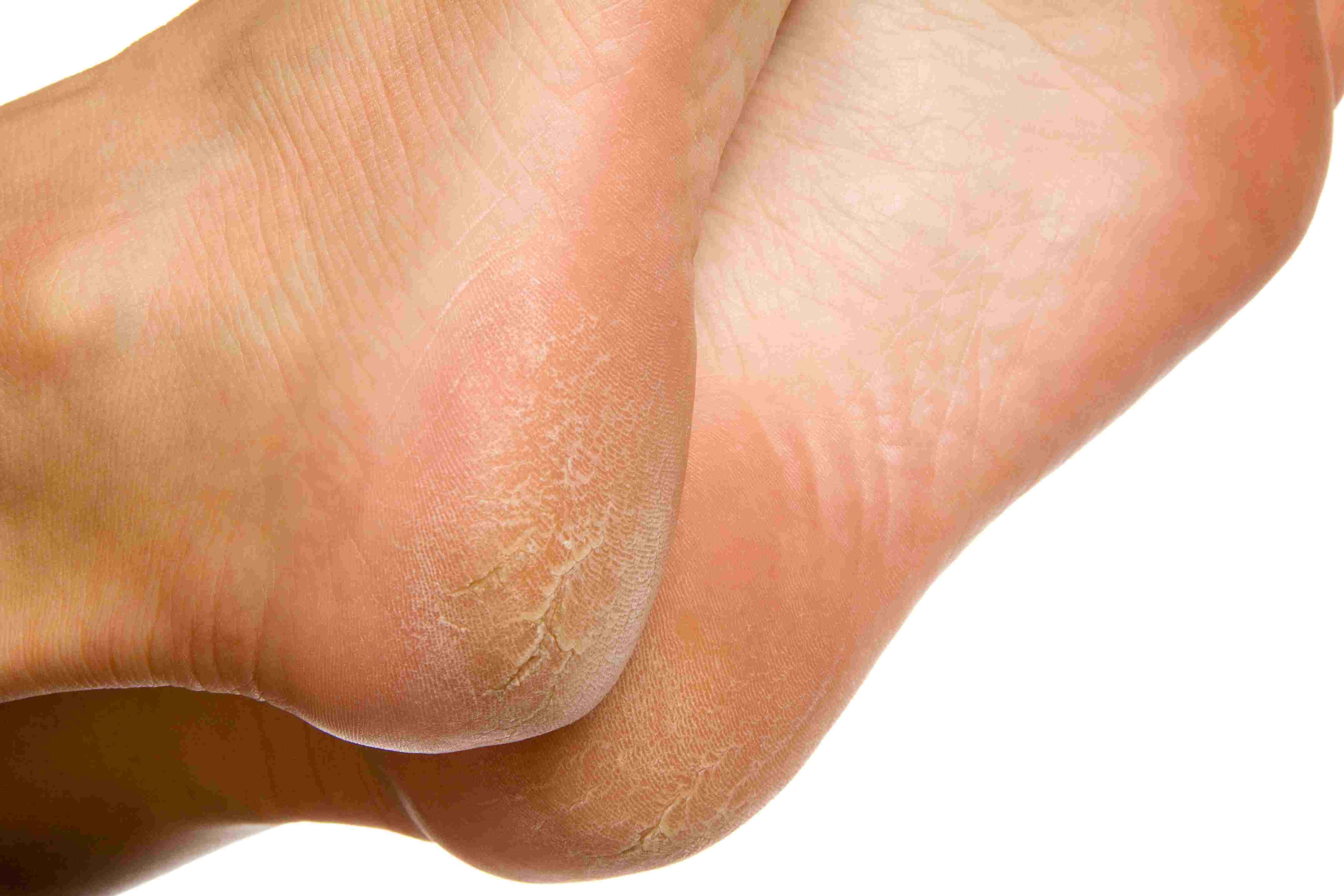 wart on foot that hurts
